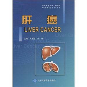肝癌病理学手绘图
