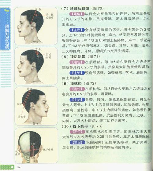 图解刮痧治病/杨中元